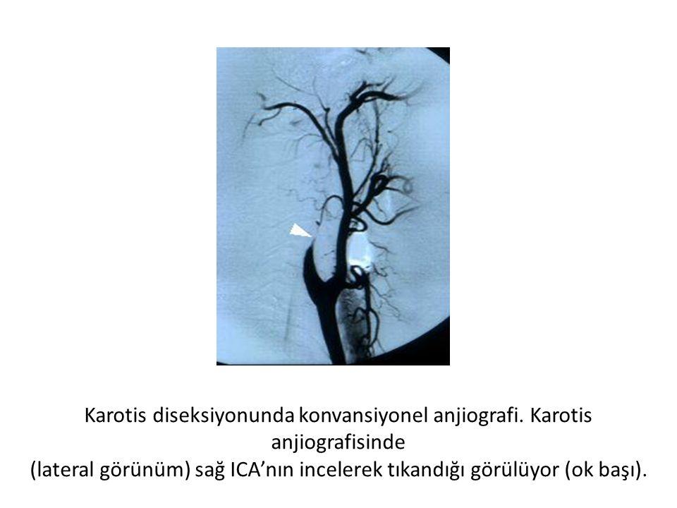 Karotis diseksiyonunda konvansiyonel anjiografi. Karotis anjiografisinde (lateral görünüm) sağ ICA'nın incelerek tıkandığı görülüyor (ok başı).