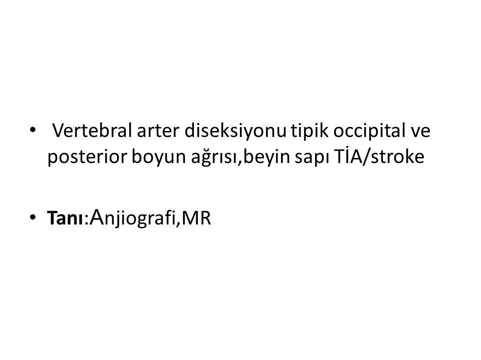 Vertebral arter diseksiyonu tipik occipital ve posterior boyun ağrısı,beyin sapı TİA/stroke Tanı: A njiografi,MR