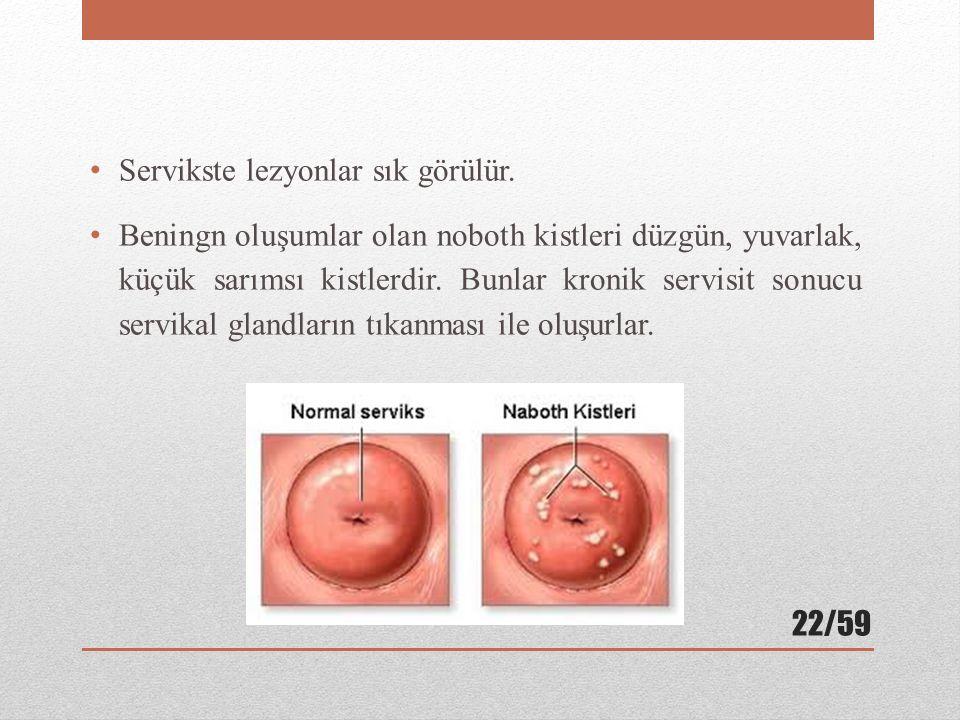 Servikste lezyonlar sık görülür. Beningn oluşumlar olan noboth kistleri düzgün, yuvarlak, küçük sarımsı kistlerdir. Bunlar kronik servisit sonucu serv