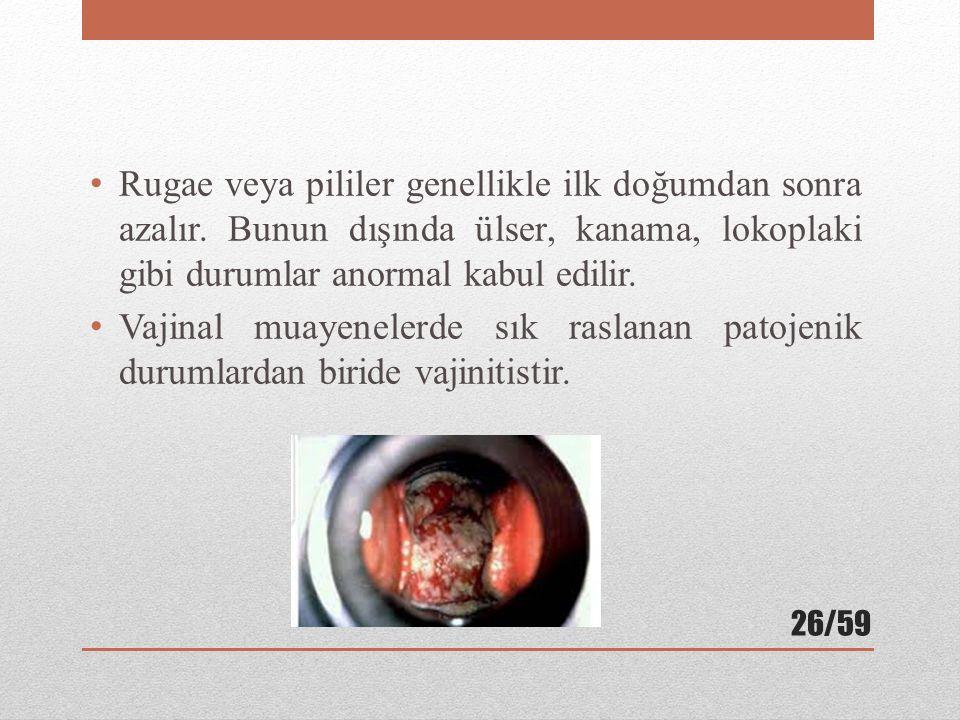 Rugae veya pililer genellikle ilk doğumdan sonra azalır.