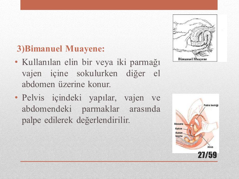 3)Bimanuel Muayene: Kullanılan elin bir veya iki parmağı vajen içine sokulurken diğer el abdomen üzerine konur. Pelvis içindeki yapılar, vajen ve abdo