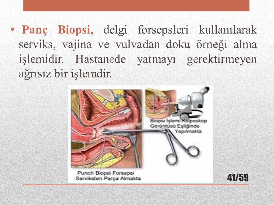 Panç Biopsi, delgi forsepsleri kullanılarak serviks, vajina ve vulvadan doku örneği alma işlemidir. Hastanede yatmayı gerektirmeyen ağrısız bir işlemd