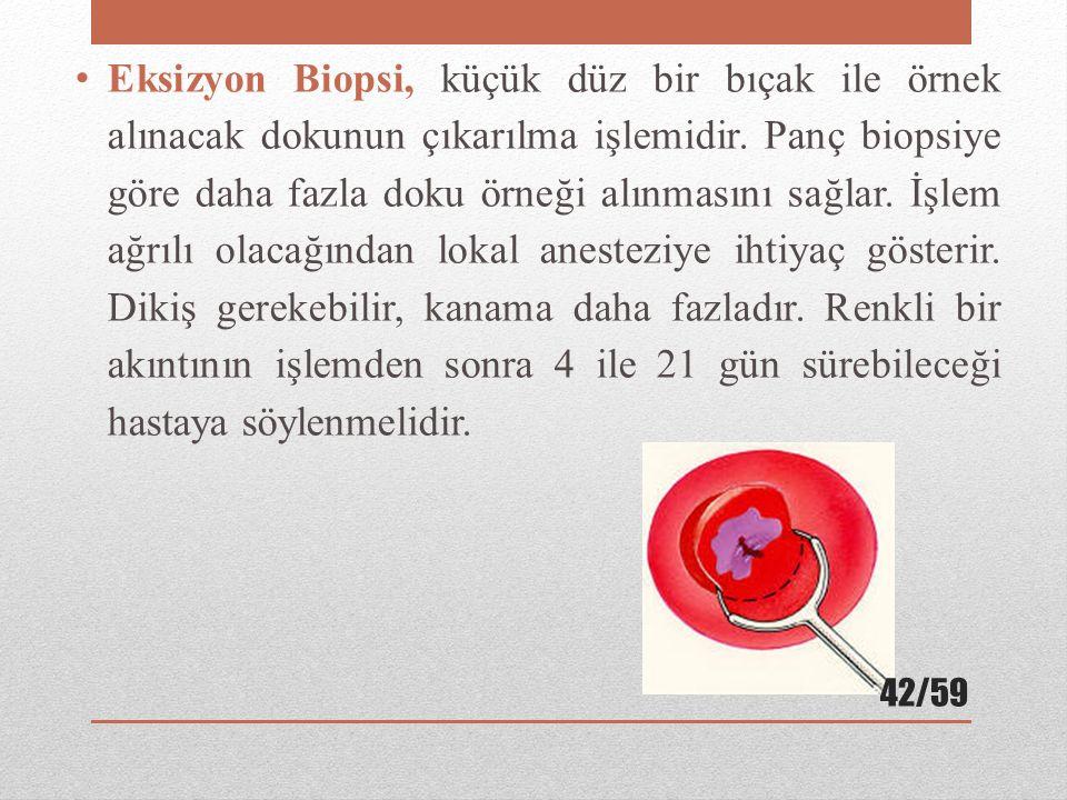 Eksizyon Biopsi, küçük düz bir bıçak ile örnek alınacak dokunun çıkarılma işlemidir. Panç biopsiye göre daha fazla doku örneği alınmasını sağlar. İşle