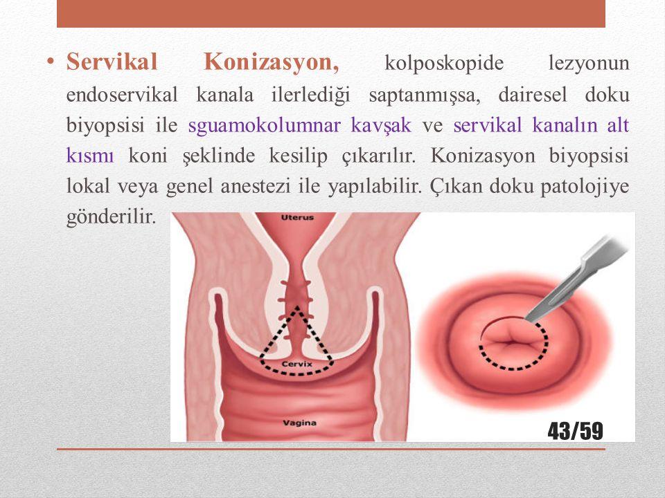 Servikal Konizasyon, kolposkopide lezyonun endoservikal kanala ilerlediği saptanmışsa, dairesel doku biyopsisi ile sguamokolumnar kavşak ve servikal k