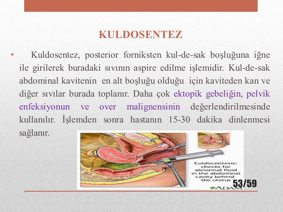 KULDOSENTEZ Kuldosentez, posterior forniksten kul-de-sak boşluğuna iğne ile girilerek buradaki sıvının aspire edilme işlemidir. Kul-de-sak abdominal k