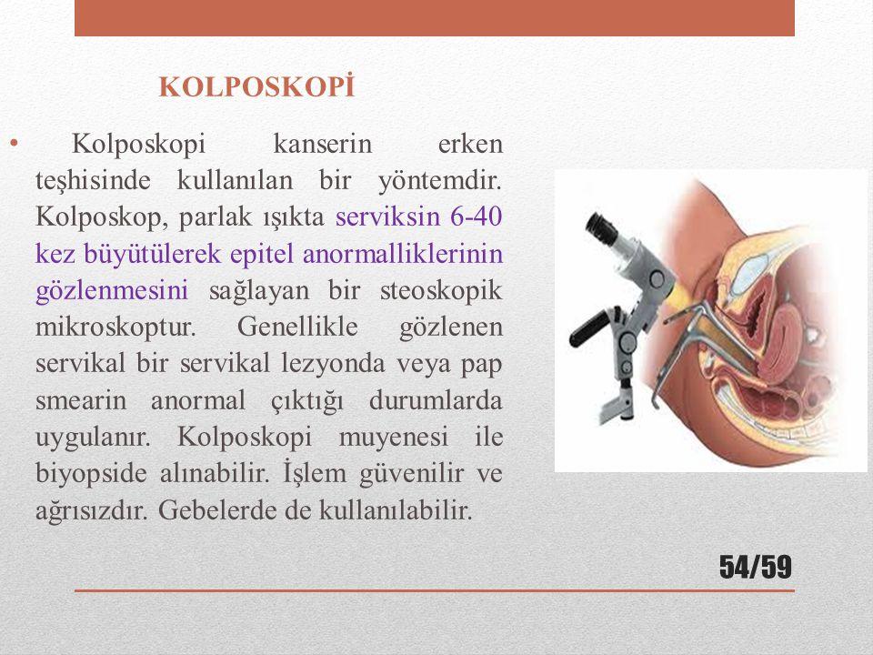 KOLPOSKOPİ Kolposkopi kanserin erken teşhisinde kullanılan bir yöntemdir. Kolposkop, parlak ışıkta serviksin 6-40 kez büyütülerek epitel anormallikler