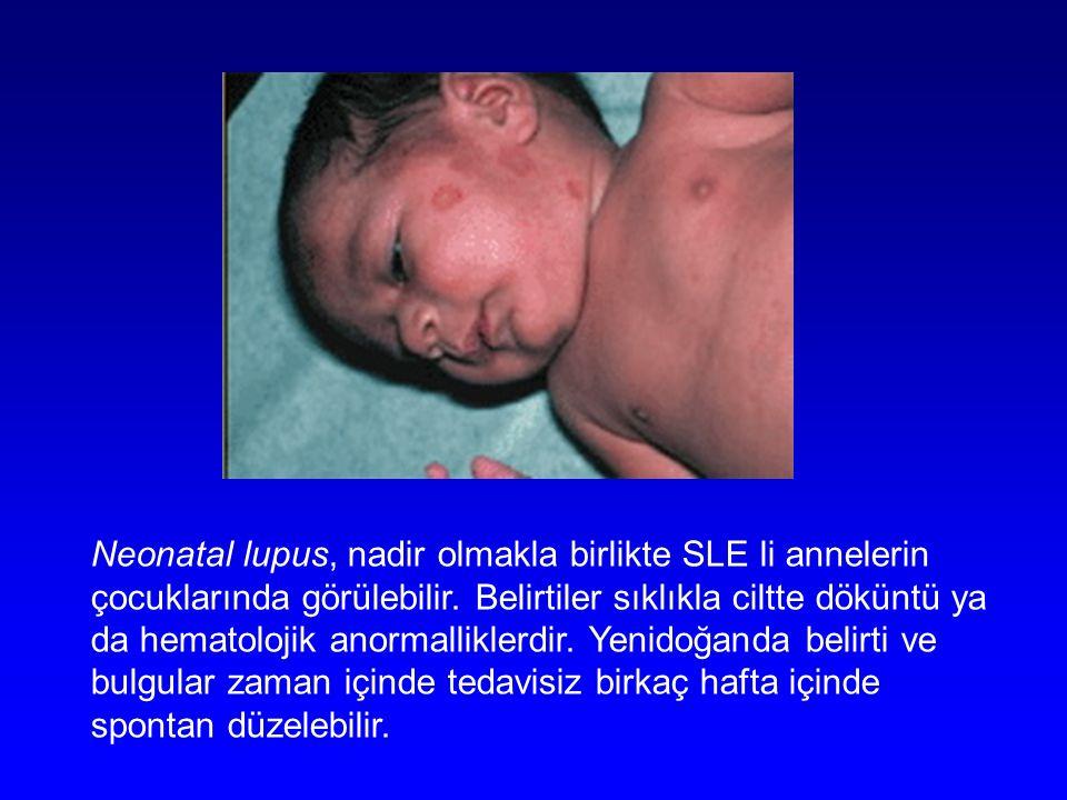 Neonatal lupus, nadir olmakla birlikte SLE li annelerin çocuklarında görülebilir.