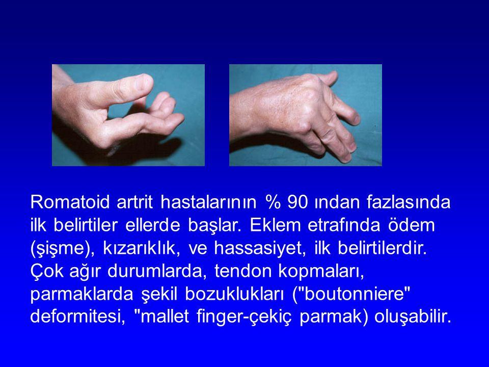 Romatoid artrit hastalarının % 90 ından fazlasında ilk belirtiler ellerde başlar.