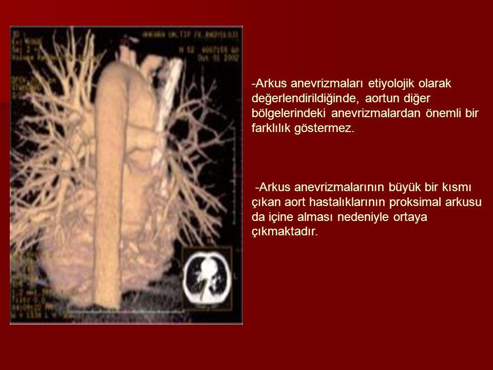 -Arkus anevrizmaları etiyolojik olarak değerlendirildiğinde, aortun diğer bölgelerindeki anevrizmalardan önemli bir farklılık göstermez. -Arkus anevri