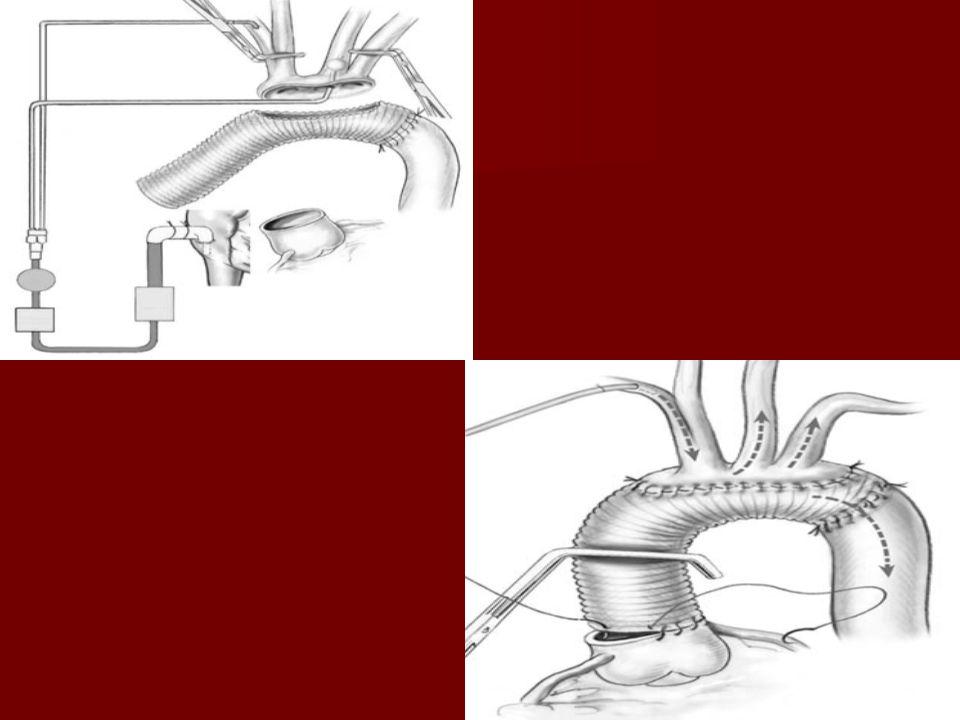 RETROGRAD SEREBRAL PERFÜZYON (RCP) RETROGRAD SEREBRAL PERFÜZYON (RCP) - Retrograd serebral perfüzyon yöntemi arkus aorta cerrahisinde güvenli dolaşım arrest süresinin artırılması için klinik uygulamaya girmiştir.