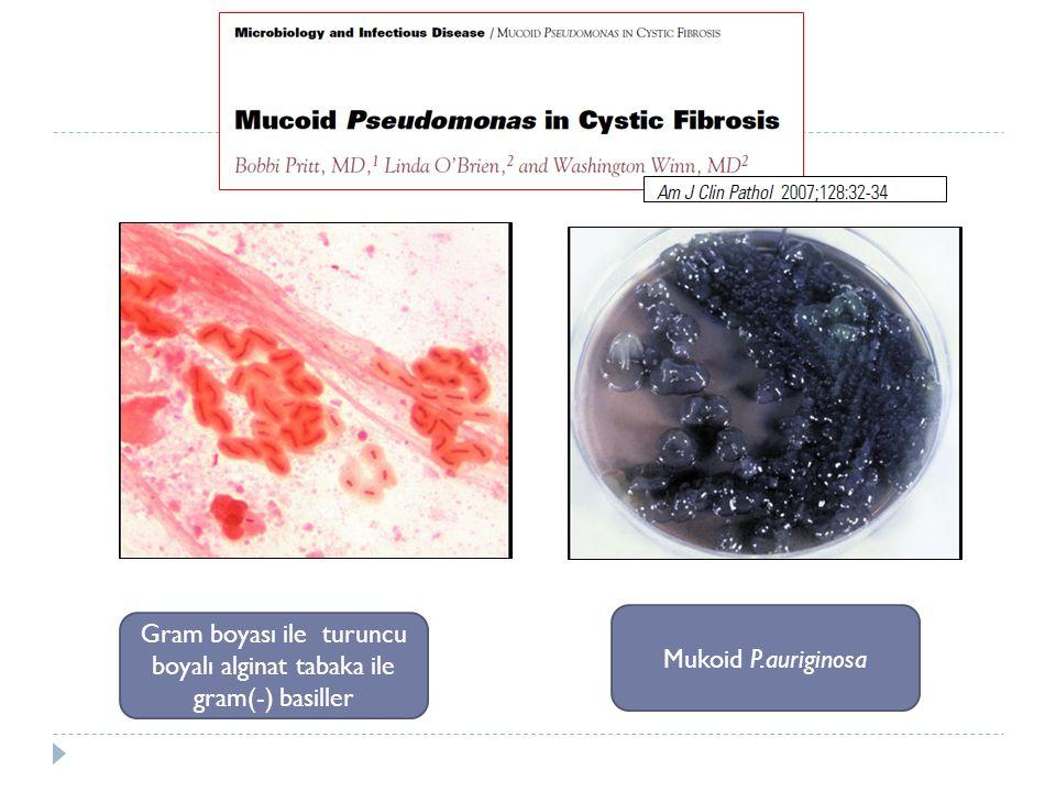 Gram boyası ile turuncu boyalı alginat tabaka ile gram(-) basiller Mukoid P.auriginosa