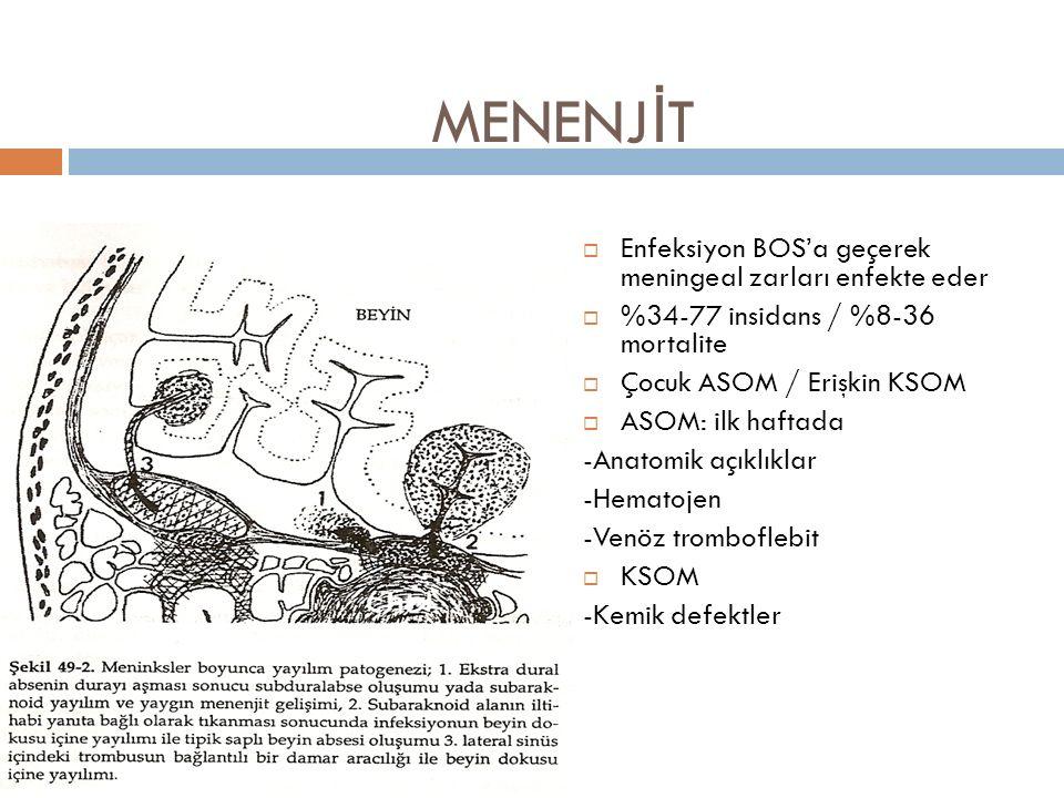 MENENJ İ T  Enfeksiyon BOS'a geçerek meningeal zarları enfekte eder  %34-77 insidans / %8-36 mortalite  Çocuk ASOM / Erişkin KSOM  ASOM: ilk hafta