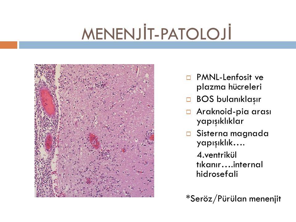MENENJ İ T-PATOLOJ İ  PMNL-Lenfosit ve plazma hücreleri  BOS bulanıklaşır  Araknoid-pia arası yapışıklıklar  Sisterna magnada yapışıklık…. 4.ventr