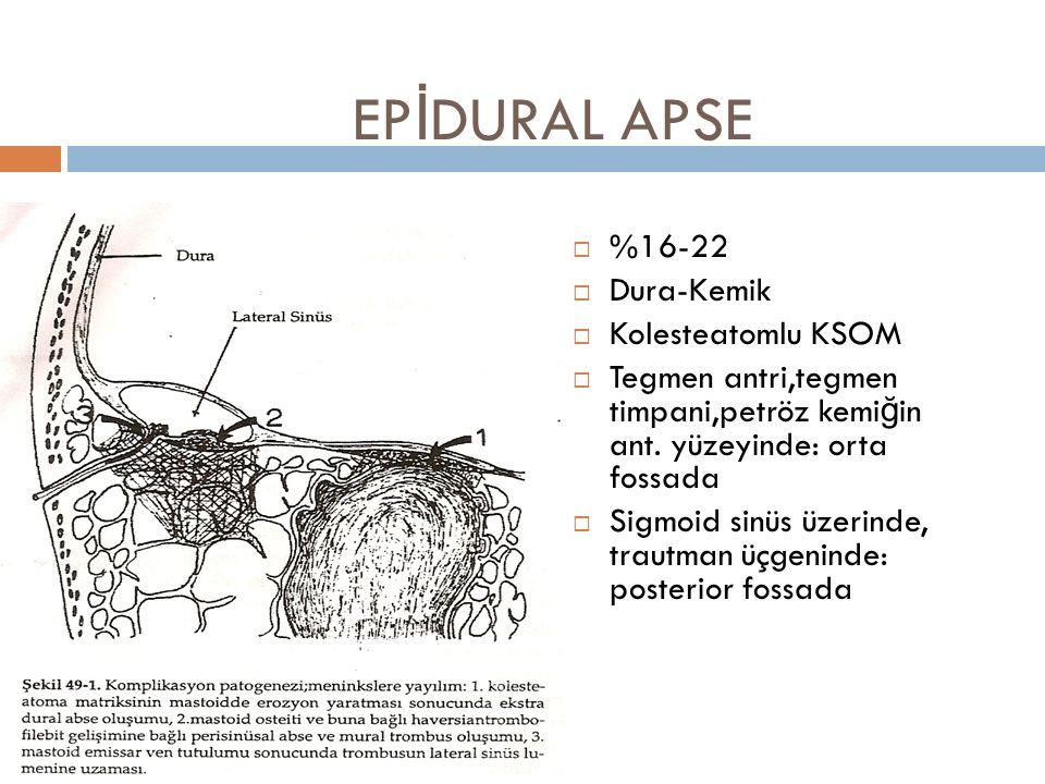 EP İ DURAL APSE  %16-22  Dura-Kemik  Kolesteatomlu KSOM  Tegmen antri,tegmen timpani,petröz kemiğin ant. yüzeyinde: orta fossada  Sigmoid sinüs ü