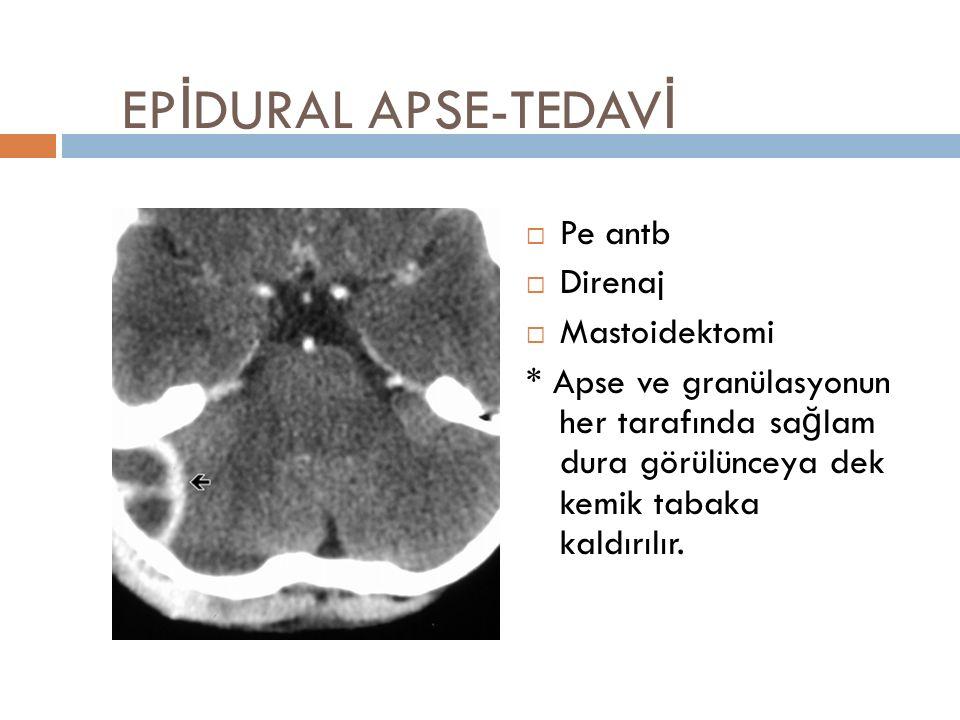 EP İ DURAL APSE-TEDAV İ  Pe antb  Direnaj  Mastoidektomi * Apse ve granülasyonun her tarafında sağlam dura görülünceya dek kemik tabaka kaldırılır.