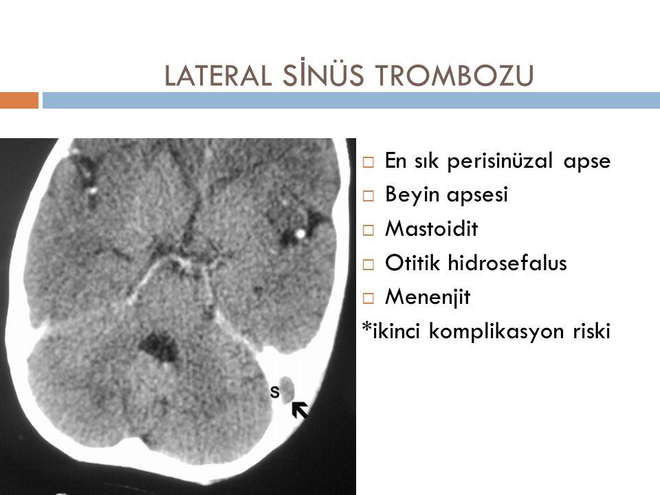 LATERAL S İ NÜS TROMBOZU  En sık perisinüzal apse  Beyin apsesi  Mastoidit  Otitik hidrosefalus  Menenjit *ikinci komplikasyon riski
