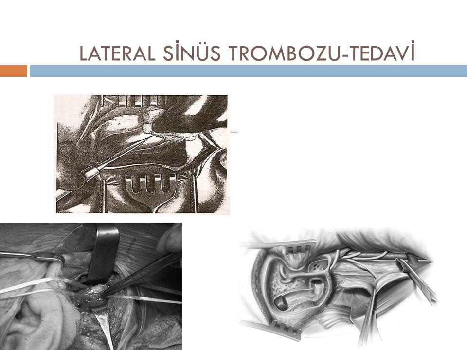 LATERAL S İ NÜS TROMBOZU-TEDAV İ