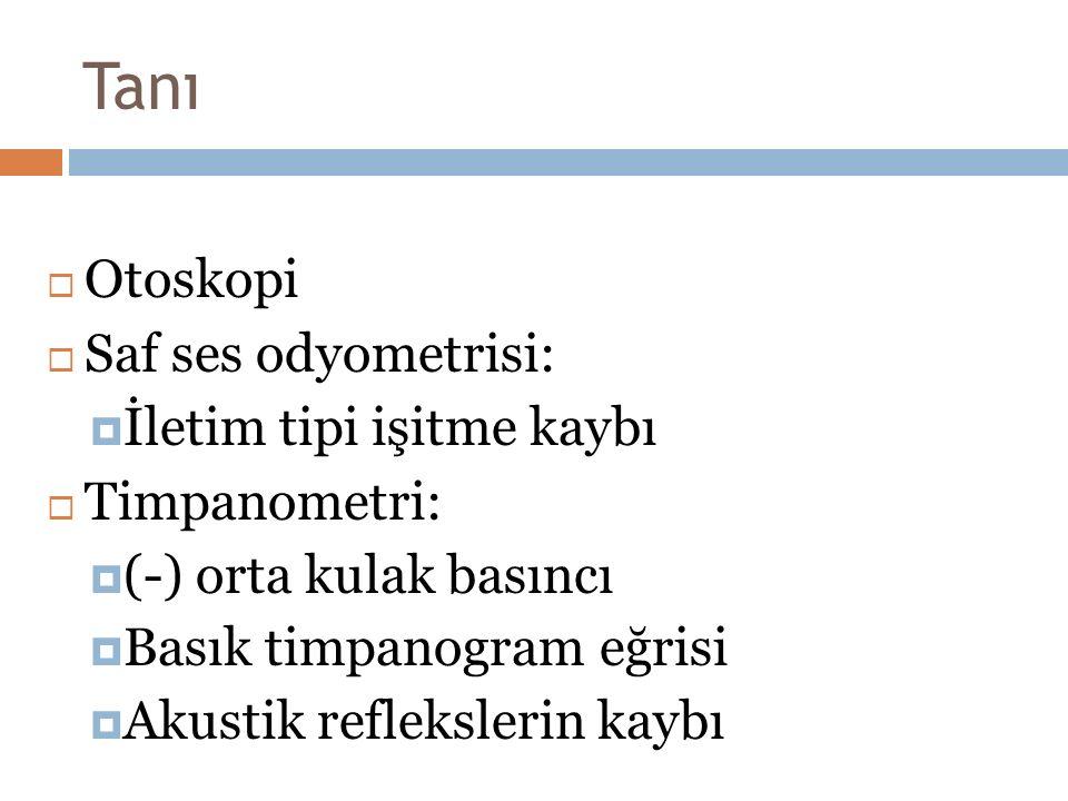 Tanı  Otoskopi  Saf ses odyometrisi:  İletim tipi işitme kaybı  Timpanometri:  (-) orta kulak basıncı  Basık timpanogram eğrisi  Akustik reflek