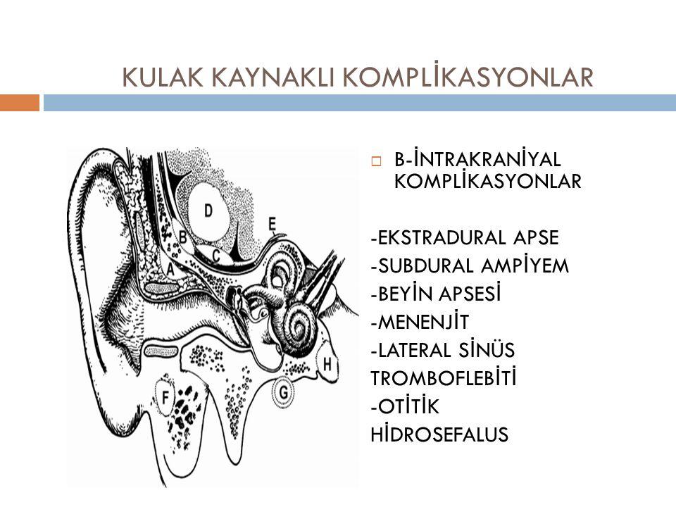KULAK KAYNAKLI KOMPL İ KASYONLAR  B-İNTRAKRANİYAL KOMPLİKASYONLAR -EKSTRADURAL APSE -SUBDURAL AMPİYEM -BEYİN APSESİ -MENENJİT -LATERAL SİNÜS TROMBOFL