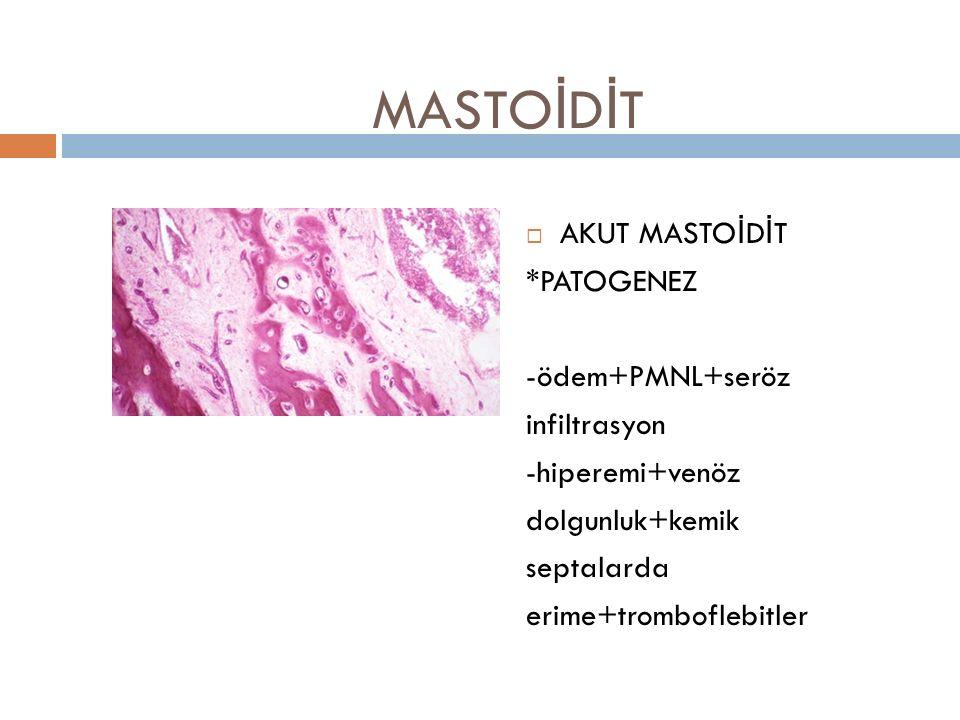 MASTO İ D İ T  AKUT MASTOİDİT *PATOGENEZ -ödem+PMNL+seröz infiltrasyon -hiperemi+venöz dolgunluk+kemik septalarda erime+tromboflebitler