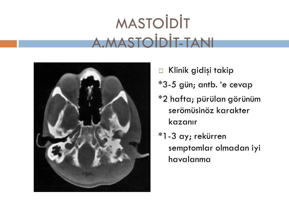 MASTO İ D İ T A.MASTO İ D İ T-TANI  Klinik gidişi takip *3-5 gün; antb. 'e cevap *2 hafta; pürülan görünüm serömüsinöz karakter kazanır *1-3 ay; rekü