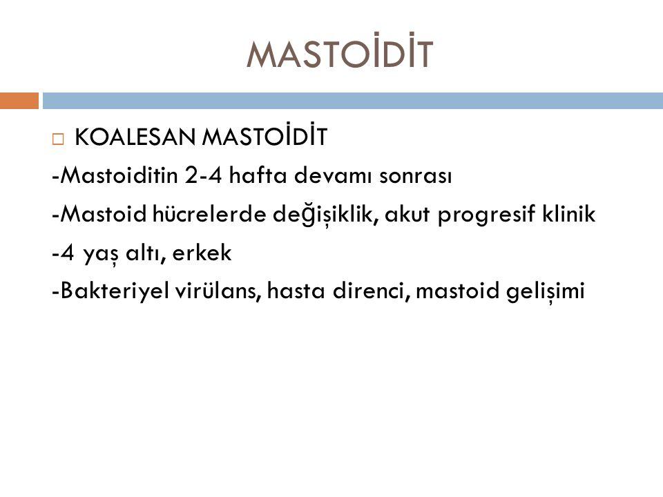 MASTO İ D İ T  KOALESAN MASTO İ D İ T -Mastoiditin 2-4 hafta devamı sonrası -Mastoid hücrelerde de ğ işiklik, akut progresif klinik -4 yaş altı, erke