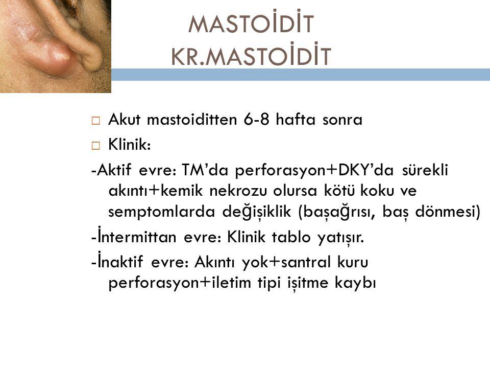 MASTO İ D İ T KR.MASTO İ D İ T  Akut mastoiditten 6-8 hafta sonra  Klinik: -Aktif evre: TM'da perforasyon+DKY'da sürekli akıntı+kemik nekrozu olursa