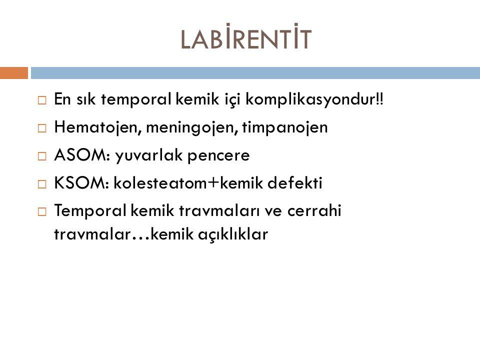 LAB İ RENT İ T  En sık temporal kemik içi komplikasyondur!!  Hematojen, meningojen, timpanojen  ASOM: yuvarlak pencere  KSOM: kolesteatom+kemik de