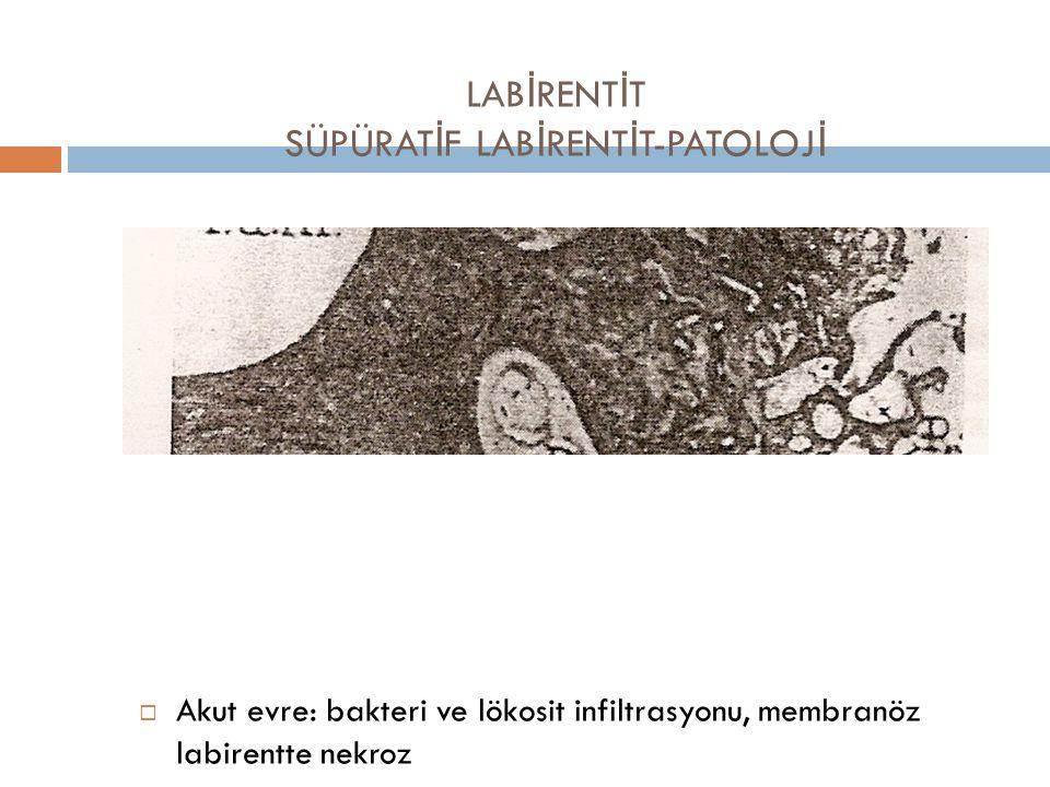 LAB İ RENT İ T SÜPÜRAT İ F LAB İ RENT İ T-PATOLOJ İ  Akut evre: bakteri ve lökosit infiltrasyonu, membranöz labirentte nekroz