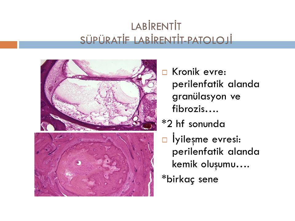 LAB İ RENT İ T SÜPÜRAT İ F LAB İ RENT İ T-PATOLOJ İ  Kronik evre: perilenfatik alanda granülasyon ve fibrozis…. *2 hf sonunda  İyileşme evresi: peri