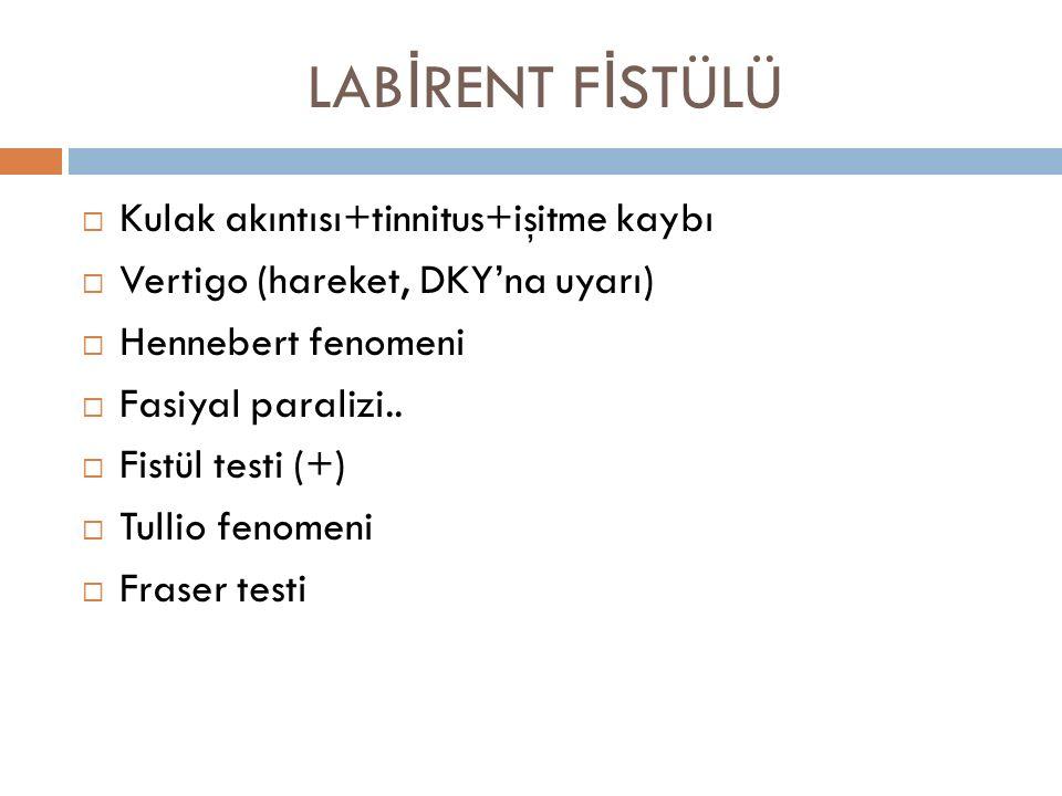 LAB İ RENT F İ STÜLÜ  Kulak akıntısı+tinnitus+işitme kaybı  Vertigo (hareket, DKY'na uyarı)  Hennebert fenomeni  Fasiyal paralizi..  Fistül testi