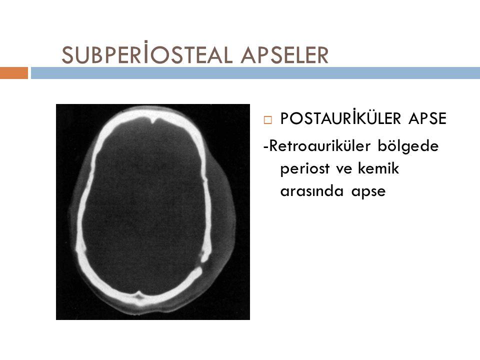 SUBPER İ OSTEAL APSELER  POSTAURİKÜLER APSE -Retroauriküler bölgede periost ve kemik arasında apse