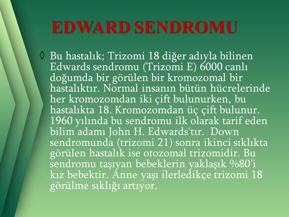 EDWARD SENDROMU ◊ Bu hastalık; Trizomi 18 diğer adıyla bilinen Edwards sendromu (Trizomi E) 6000 canlı doğumda bir görülen bir kromozomal bir hastalıktır.