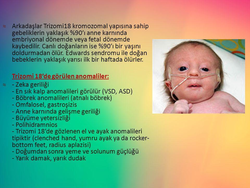 ≈Arkadaşlar Trizomi18 kromozomal yapısına sahip gebeliklerin yaklaşık %90'ı anne karnında embriyonal dönemde veya fetal dönemde kaybedilir. Canlı doğa