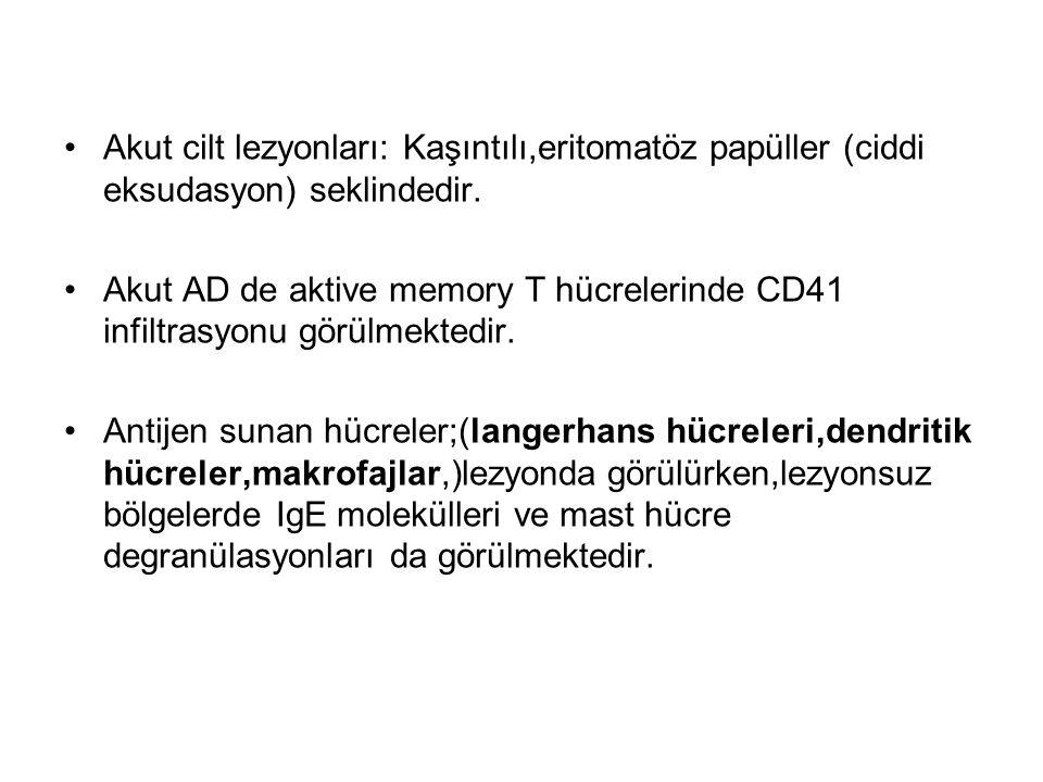 Akut cilt lezyonları: Kaşıntılı,eritomatöz papüller (ciddi eksudasyon) seklindedir. Akut AD de aktive memory T hücrelerinde CD41 infiltrasyonu görülme