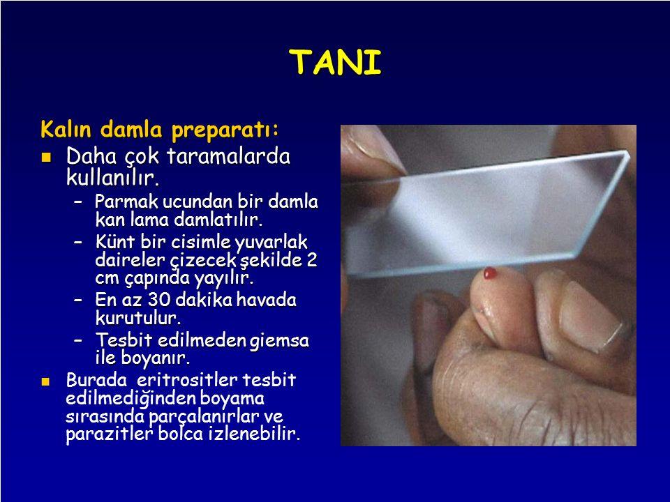 TANI Kalın damla preparatı: Daha çok taramalarda kullanılır. Daha çok taramalarda kullanılır. –Parmak ucundan bir damla kan lama damlatılır. –Künt bir
