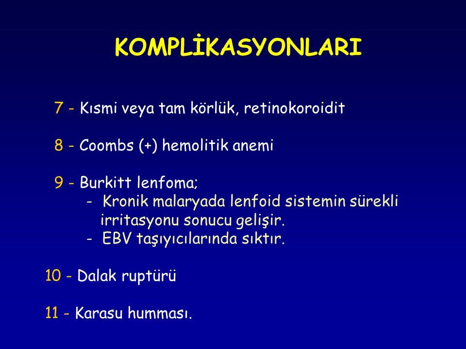 7 - Kısmi veya tam körlük, retinokoroidit 8 - Coombs (+) hemolitik anemi 9 - Burkitt lenfoma; - Kronik malaryada lenfoid sistemin sürekli irritasyonu