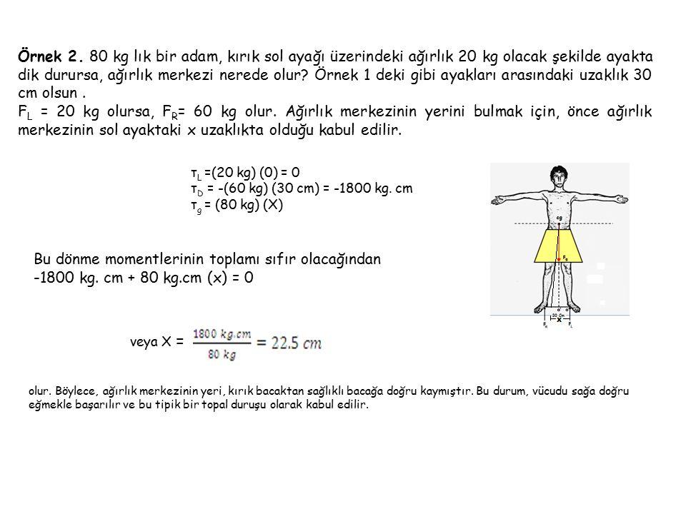 Örnek 2. 80 kg lık bir adam, kırık sol ayağı üzerindeki ağırlık 20 kg olacak şekilde ayakta dik durursa, ağırlık merkezi nerede olur? Örnek 1 deki gib