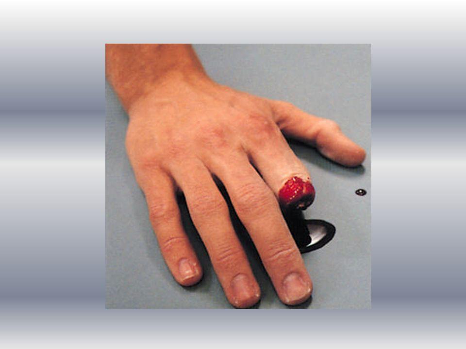Uzuv kopmalarında ilk yardım uygulama tekniği Hasta veya yaralının durumu (ABC) değerlendirilir, Hemen tıbbi yardım (112 aranır) istenir.