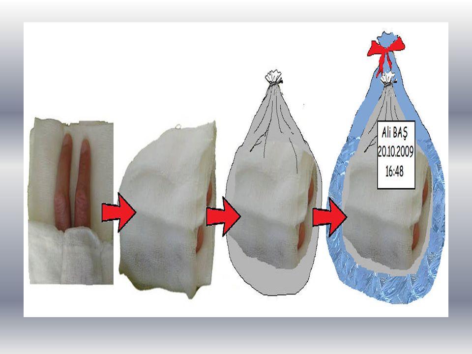 İÇ KANAMALAR Kanın damar dışına çıkarak vücut boşlukları (karın boşluğu, göğüs boşluğu, içi boş olan organlar, eklem boşluğu vb.) içine sızmasına iç kanama denir.