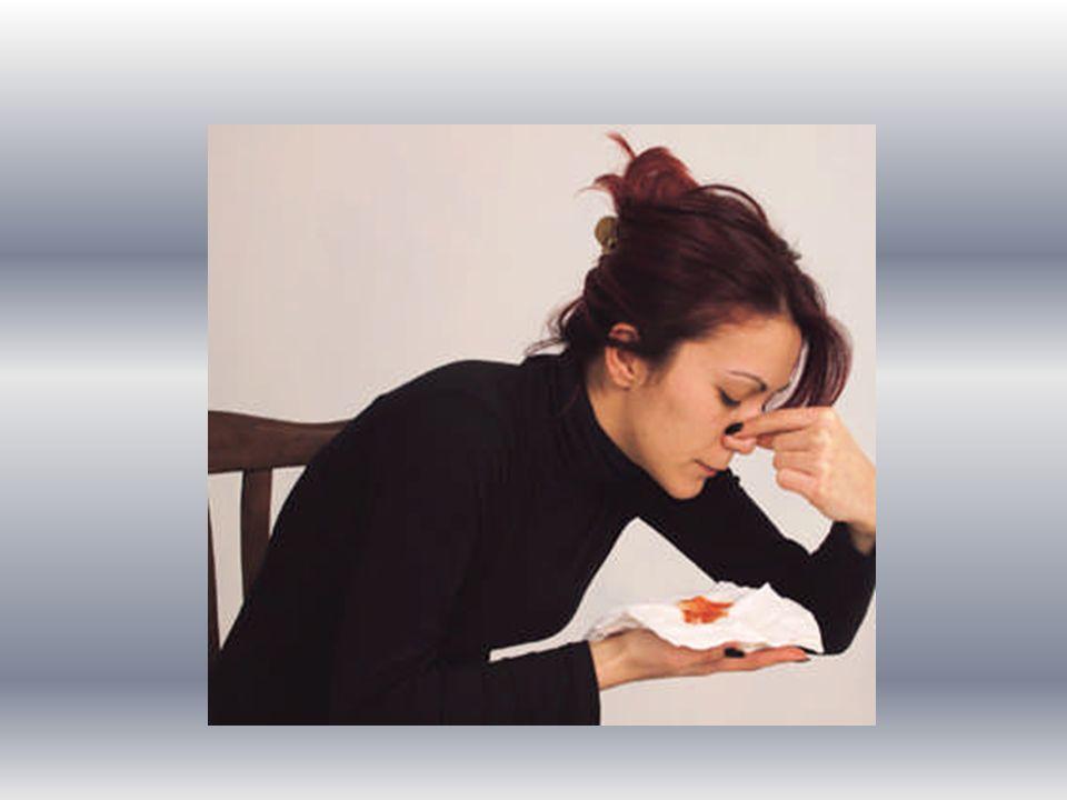 Kulak Kanamalarında İlk Yardım Kulak kanamaları, kulaktaki tahrişler veya enfeksiyonlar sonucunda oluşabileceği gibi baş yaralanması sonucu da görülebilir.