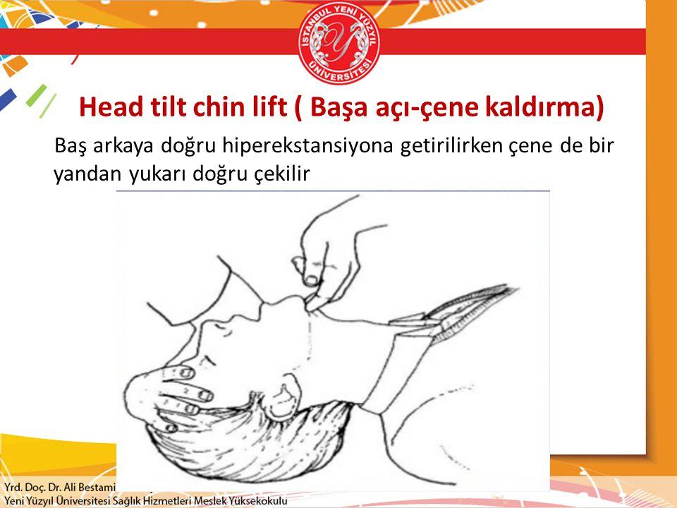 Head tilt chin lift ( Başa açı-çene kaldırma) Baş arkaya doğru hiperekstansiyona getirilirken çene de bir yandan yukarı doğru çekilir