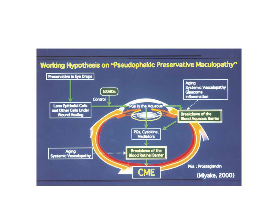 Benzalkonium chloride içeren damlalar katarakt cerrahisi sonrası iyileşme döneminde lens epitel hücreleri veya ön üveal dokuya temas ederse PG gibi kimyasal medyatörlerin sentezi artar Kan-aköz bariyerinin bozulma PG lerin ve diğer sitokinlerin hümör aköz ve vitreusta dağılması Kan-retina bariyerinin bozulması KMÖ insidansında artış