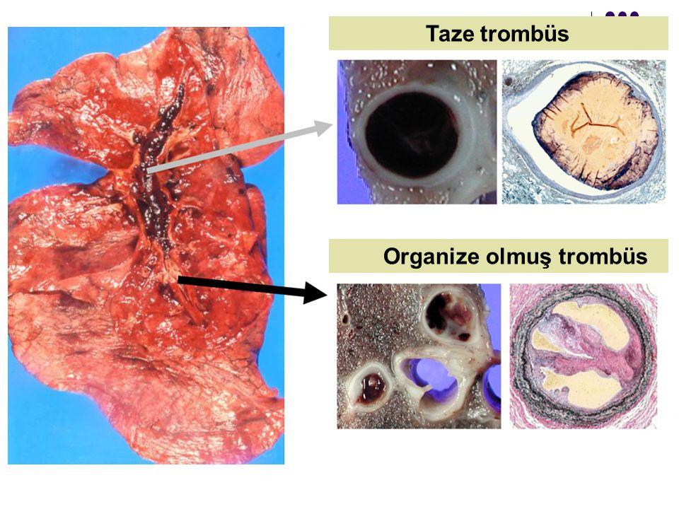 Taze trombüs Organize olmuş trombüs