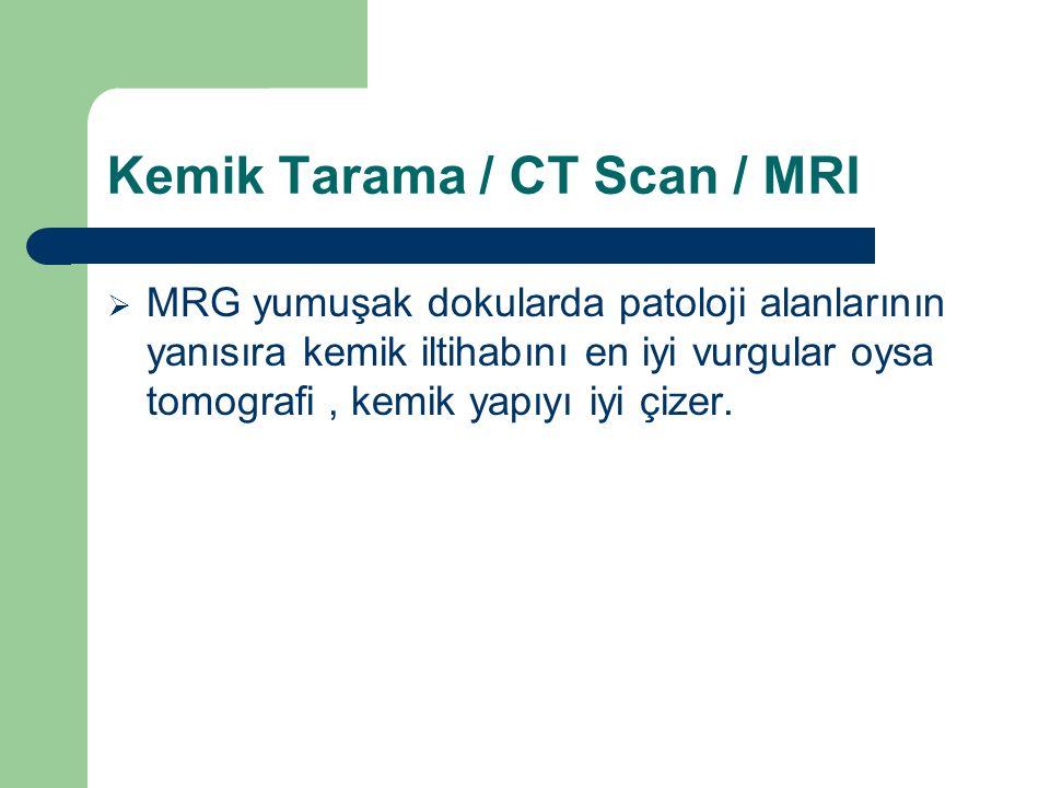 Kemik Tarama / CT Scan / MRI  MRG yumuşak dokularda patoloji alanlarının yanısıra kemik iltihabını en iyi vurgular oysa tomografi, kemik yapıyı iyi ç