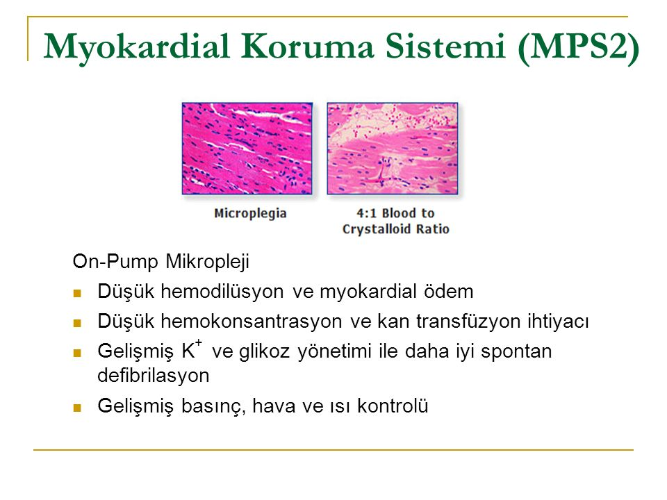On-Pump Mikropleji Düşük hemodilüsyon ve myokardial ödem Düşük hemokonsantrasyon ve kan transfüzyon ihtiyacı Gelişmiş K + ve glikoz yönetimi ile daha