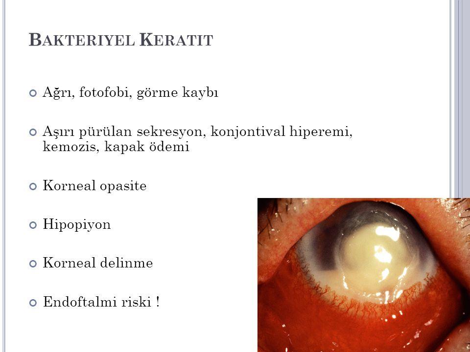 B AKTERIYEL K ERATIT Ağrı, fotofobi, görme kaybı Aşırı pürülan sekresyon, konjontival hiperemi, kemozis, kapak ödemi Korneal opasite Hipopiyon Korneal