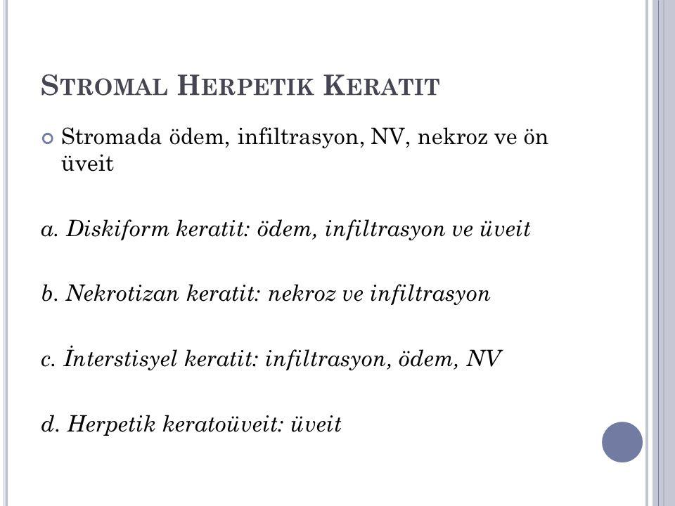 S TROMAL H ERPETIK K ERATIT Stromada ödem, infiltrasyon, NV, nekroz ve ön üveit a. Diskiform keratit: ödem, infiltrasyon ve üveit b. Nekrotizan kerati