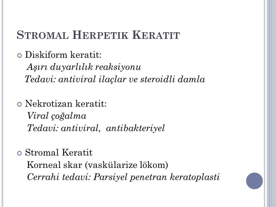 S TROMAL H ERPETIK K ERATIT Diskiform keratit: Aşırı duyarlılık reaksiyonu Tedavi: antiviral ilaçlar ve steroidli damla Nekrotizan keratit: Viral çoğalma Tedavi: antiviral, antibakteriyel Stromal Keratit Korneal skar (vaskülarize lökom) Cerrahi tedavi: Parsiyel penetran keratoplasti