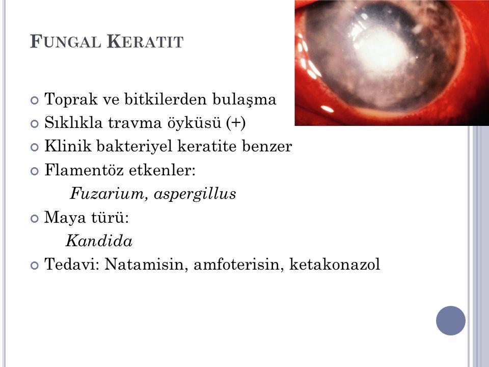 F UNGAL K ERATIT Toprak ve bitkilerden bulaşma Sıklıkla travma öyküsü (+) Klinik bakteriyel keratite benzer Flamentöz etkenler: Fuzarium, aspergillus Maya türü: Kandida Tedavi: Natamisin, amfoterisin, ketakonazol